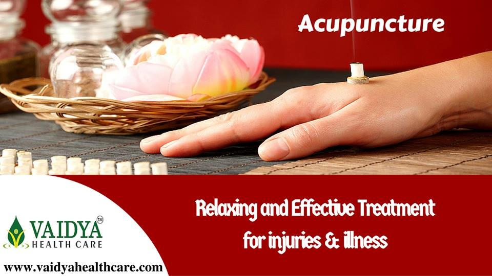 Accupuncture treatment in kerala