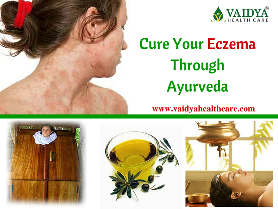 ayurvdic treatment for eczema in kerala