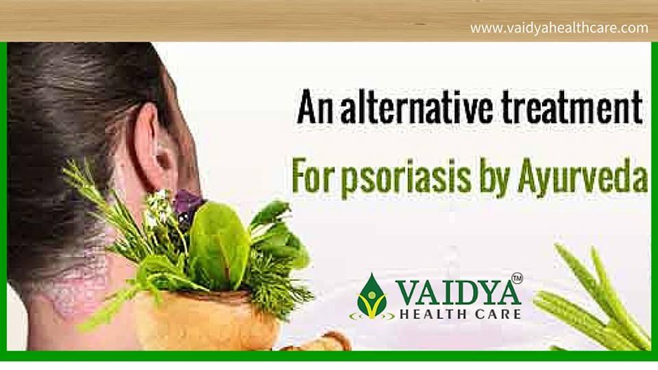 Ayurvedic Treatment for Psoriasis in ernakulam, kerala